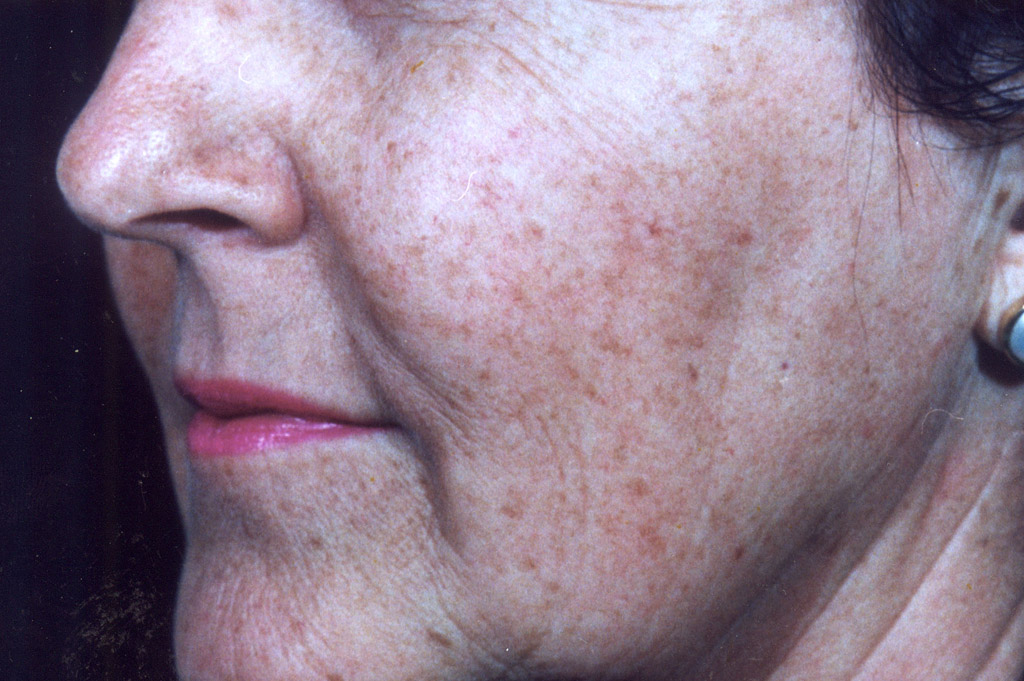 Environ Skin Care | What it can do for skin - Aging Skin - After