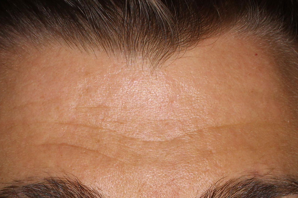 Mans forehead -Before essential moisture boost