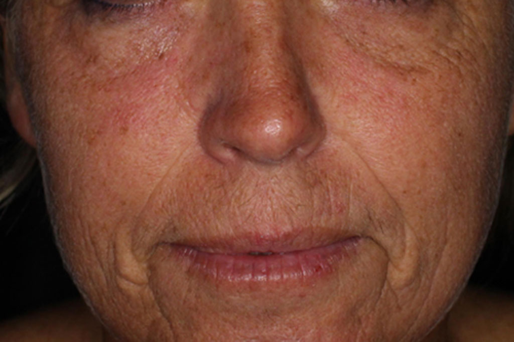 Woman's half face - before moisture boost cool peel