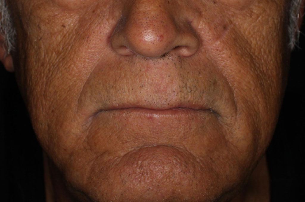 male - vibrant c micro peel before image