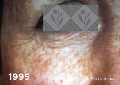 1995 2 | Environ Skin Care