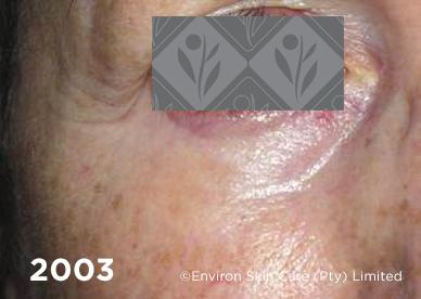 2003 2 - Environ Skin Care