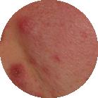 Breakout | Environ Skin Care