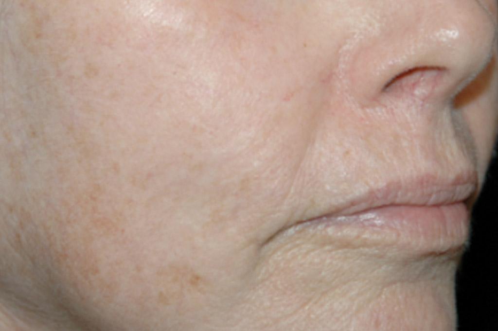 Sun Damage After | Environ Skin Care