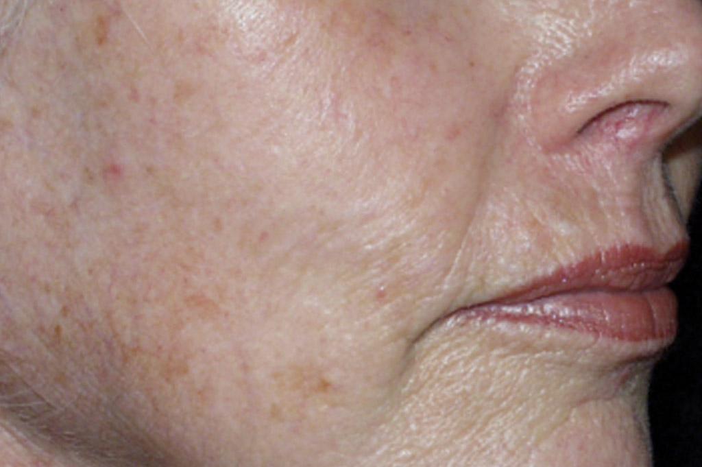 Sun Damage Before | Environ Skin Care