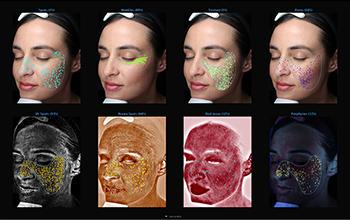 VISIA Advanced Skin Analysis Machin - Measuring Skin Concerns | Environ SKin Care